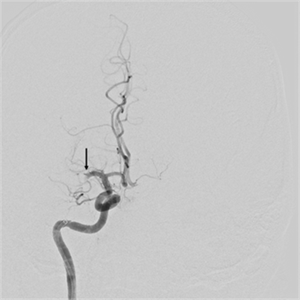 Angiogram shows complete occlusion of the right middle cerebral artery (arrow).