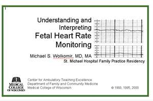 Understanding and Interpreting Fetal Heart Rate Monitoring