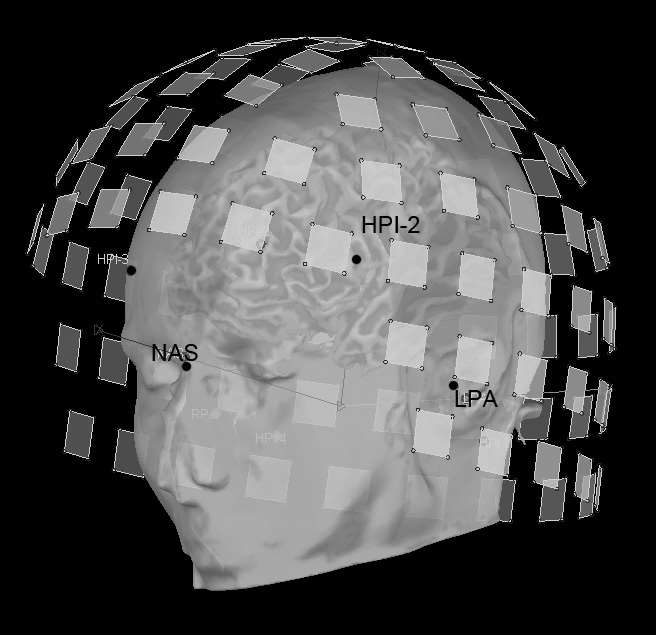 Multimodal MEG/MRI geometrical registration