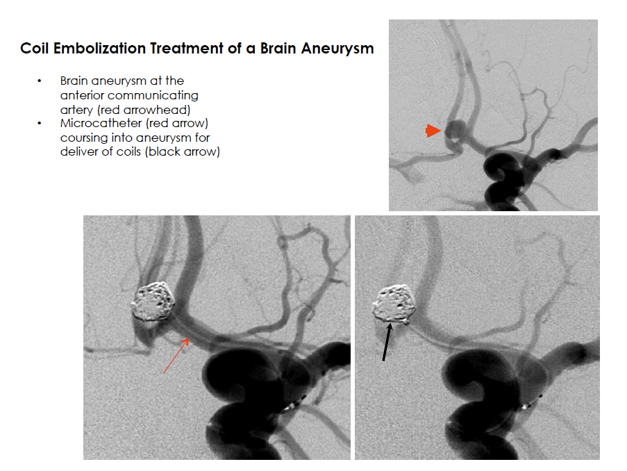 Coil Embolization Treatment of a Brain Aneurysm