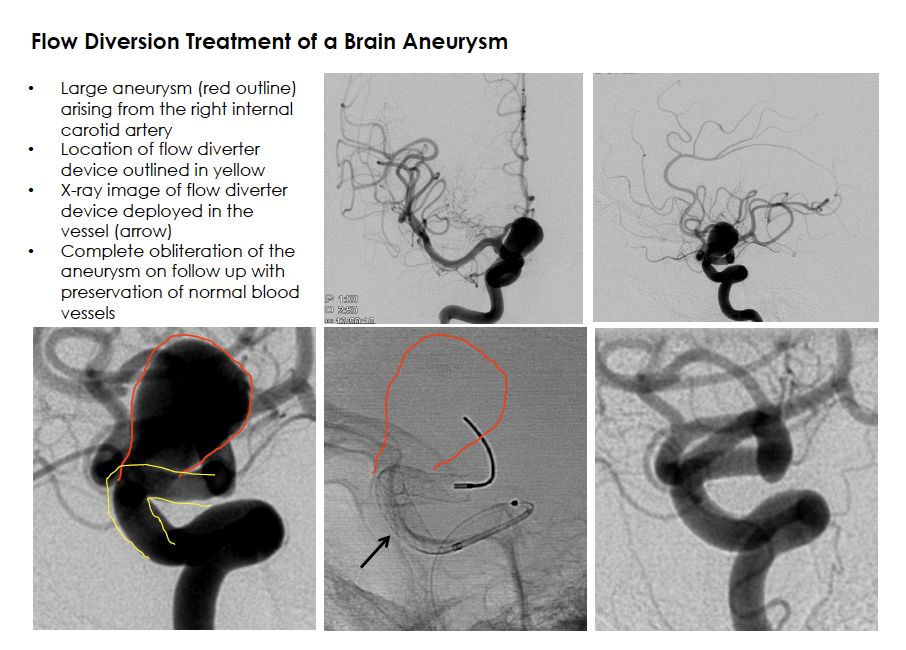 Flow Diversion Treatment of a Brain Aneurysm