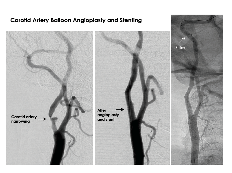 Carotid Artery Balloon Angioplasty and Stenting