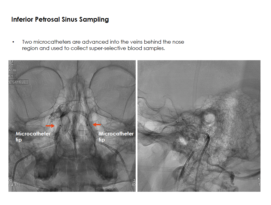 Inferior Petrosal Sinus Sampling