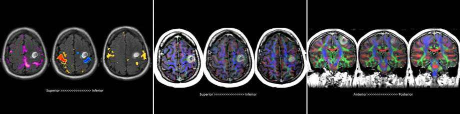 Neuroradiology Brain Mapping Advanced Brain Banner
