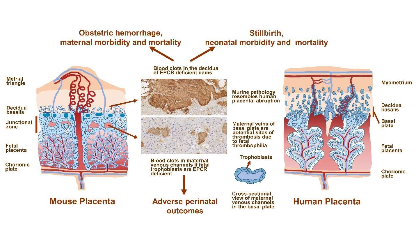 Study Reveals a Link Between Thrombophilia Placental Abruption and Obstetric Hemorrhage