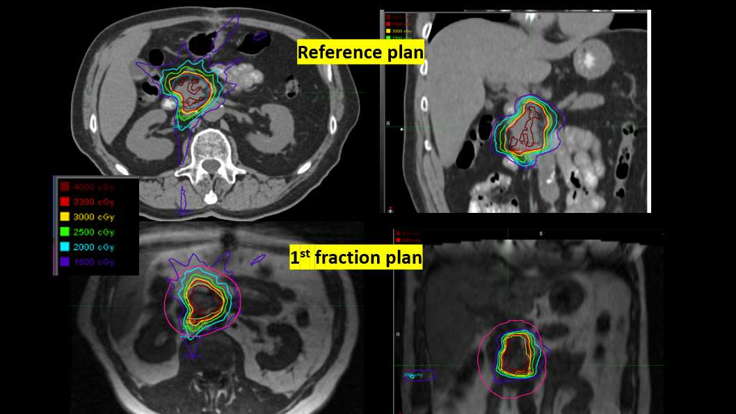 Pancreatic cancer treated with MR-guided ART